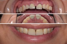 THERAPY OF FRACTURED ROOTH OF CENTRAL INCISORS WITH DENTAL IMPLANTS PLACED IMMEDIATELY AFTER TEETH EXTRACTIONS, TEMPORARY CROWNS AND CERAMIC CROWNS