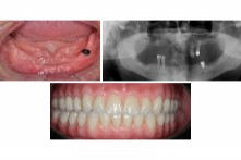 THERAPY OF EDENTULOUS LOWER JAW WITH 4 DENTAL IMPLANTS