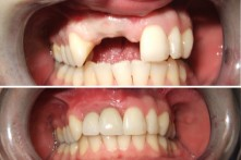 THERAPY OF LOST INCISORS WITH DENTAL IMPLANTS AND METAL-CERAMIC CROWNS