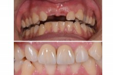 THERAPY OF LOST UPPER INCISORS WITH DENTAL IMPLANT AND CERAMIC CROWN