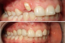 THERAPY OF LOST INCISORS AND CANINE WITH DENTAL IMPLANT AND CERAMIC CROWN
