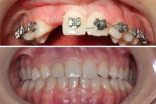 THERAPY OF LOST UPPER LATERAL INCISOR WITH DENTAL IMPLANT AND CERAMIC CROWN