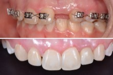 THERAPY OF LOST UPPER INCISOR WITH DENTAL IMPLANT AND CERAMIC CROWN