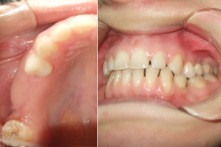 THERAPY OF LOST POSTERIOR TEETH WITH DENTAL IMPLANT AND METAL-CERAMIC CROWNS
