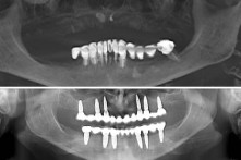 THERAPY OF BOTH EDENTULOUS  JAWS WITH DENTAL IMPLANTS AND CERAMIC BRIDGES
