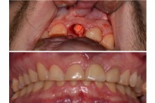 THERAPY OF THE FRACTURE OF CENTRAL INCISOR WITH DENTAL IMPLANT AND CERAMIC CROWN