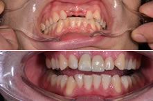 Therapy of lost incisors with implants