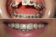 Therapy of missing upper incisor with implant