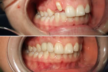 Therapy of lost upper incisor and canine with implants