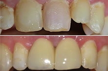 Therapy of fractured incisors with implants