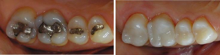 Kompozitna restauracija zuba