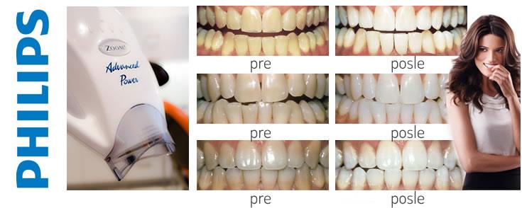 Beljenje zuba - Philips Zoom